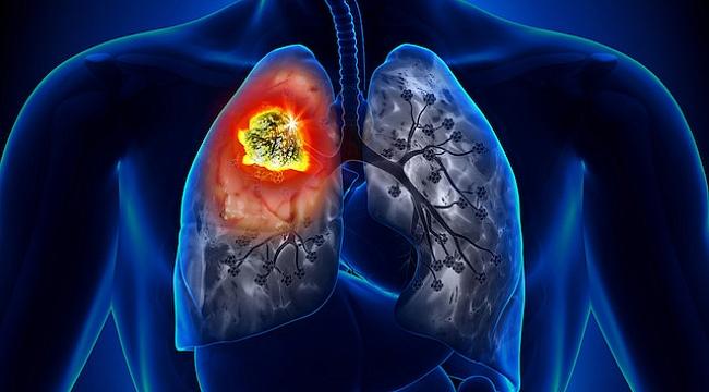 Akciğer şurubu ile akciğer temizliği için ne yapmalı?
