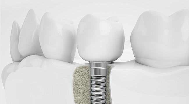 İmplant diş fiyatları ne kadar?