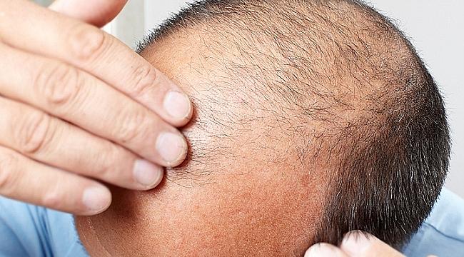 Saç ekim merkezleri nerelerde var?