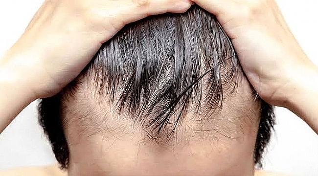 Saç Dökülmesine Sebep Olan Vitamin Eksiklikleri